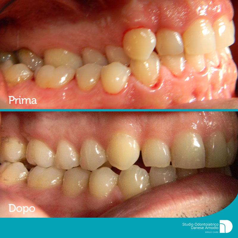 img_caso_clinico_malocclusione_lato_dx